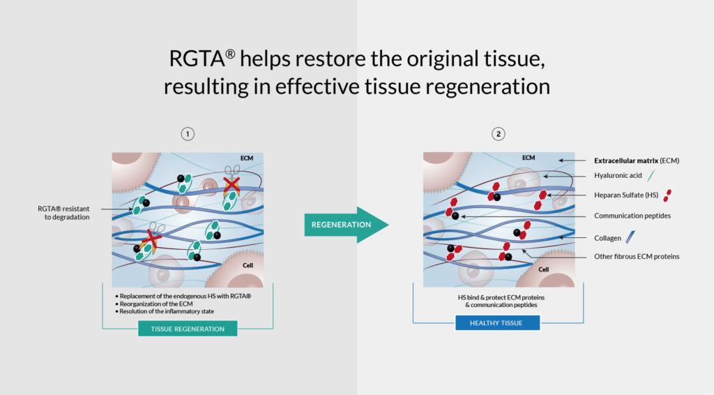 Tissue regeneration withRGTA